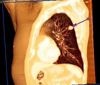 cancer neuroendocrino na regiao cervical)