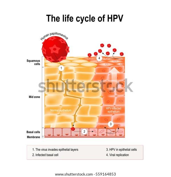human papillomavirus infection genital warts