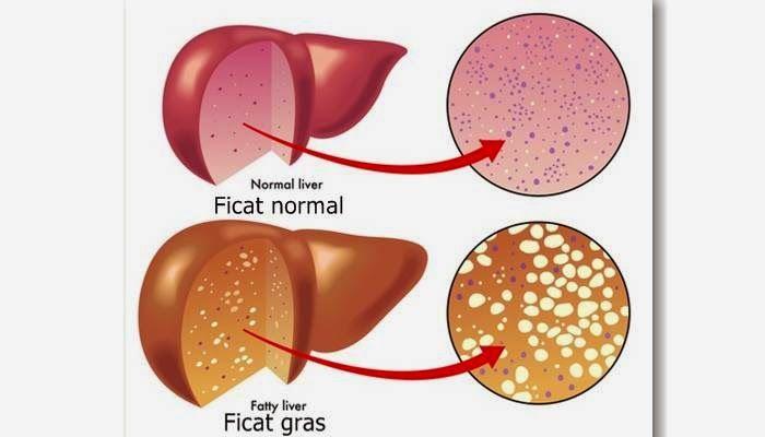cancerul de ficat simptome