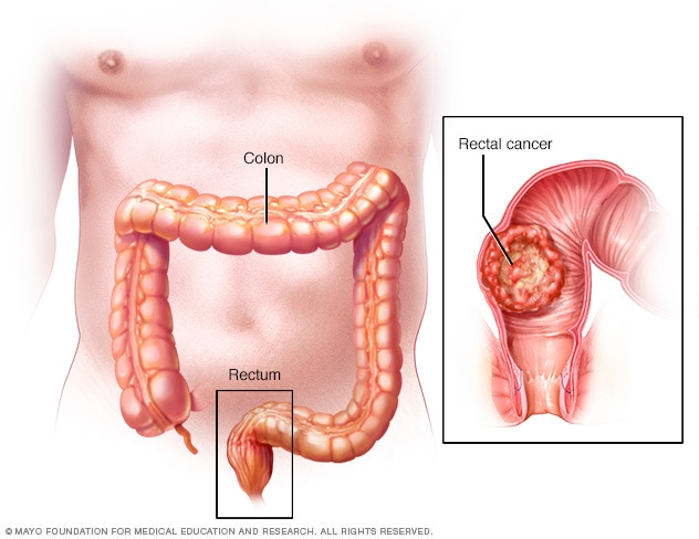 A real health problem of our days: Colorectal Cancer : ARS Medica Tomitana