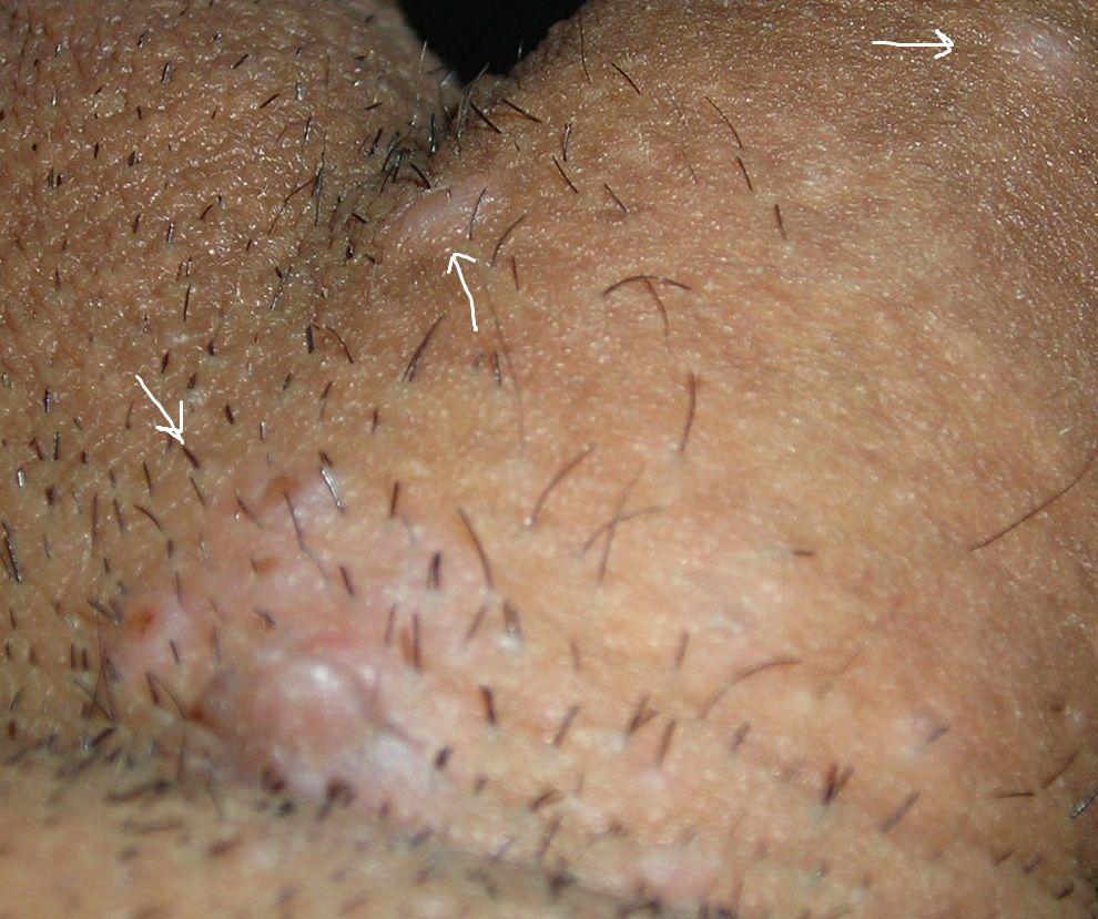 hpv warts vs pimples human papillomavirus studies