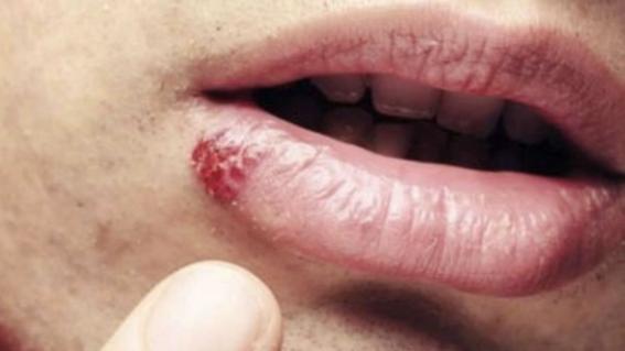 virus del papiloma humano en el ano)