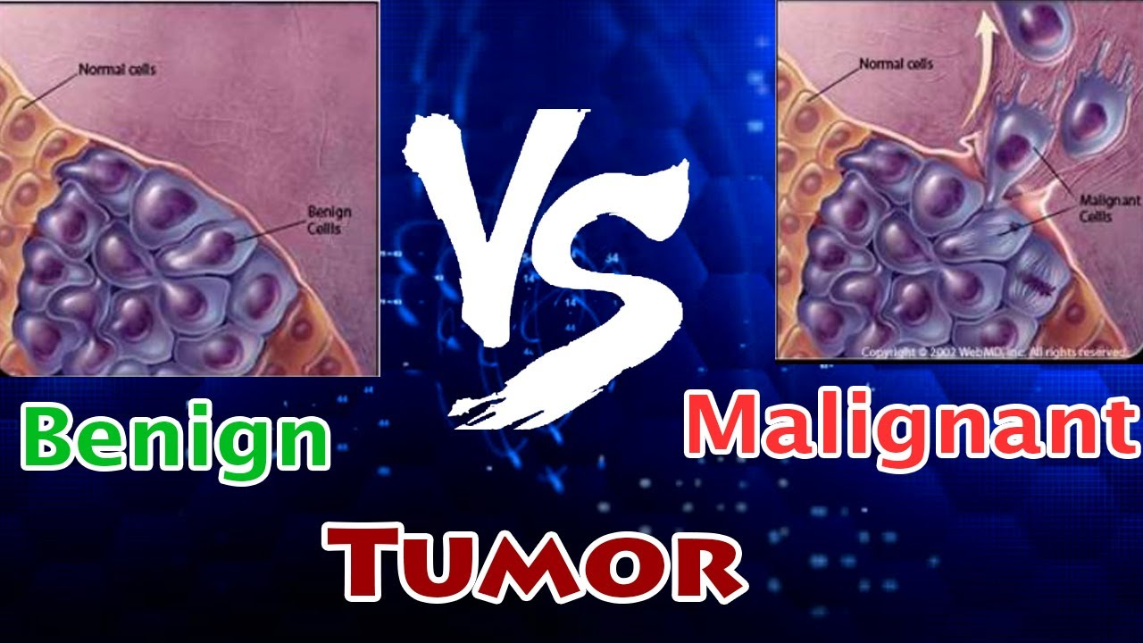 Lucrare Licenta Nursing Ia Bolnave Cu Cancer de Col Uterin