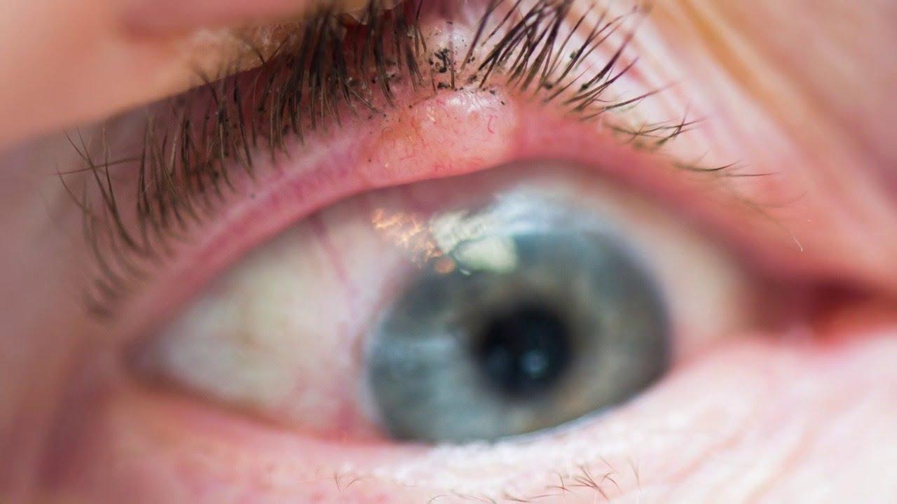 papilloma inside eyelid
