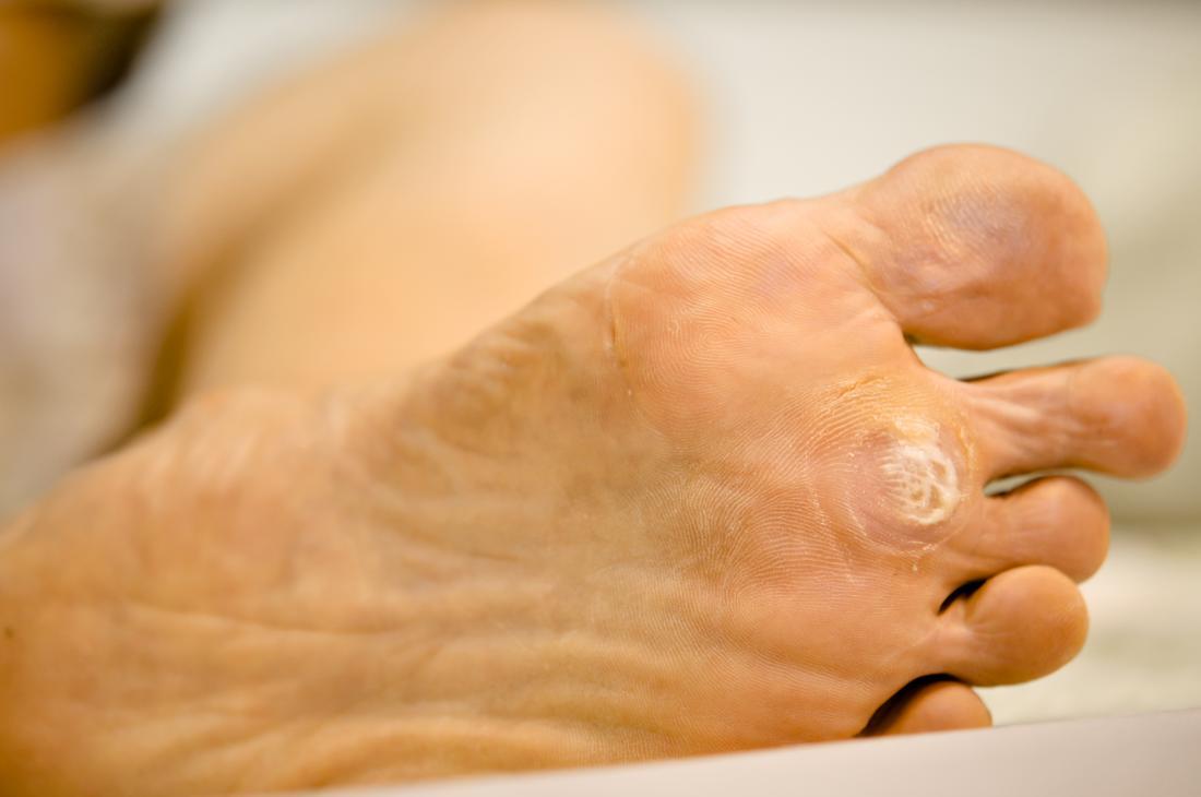wart on foot side)
