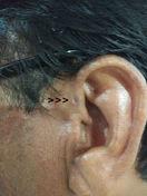 Chisturi Si Tumori Benigne Ale Partilor Moi Orale Si Cervico-faciale