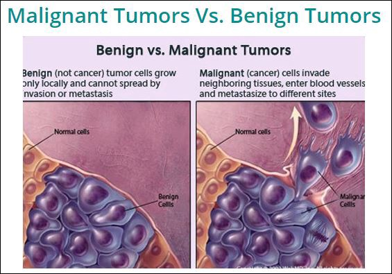 Care este diferenta intre cancer malign si benign?