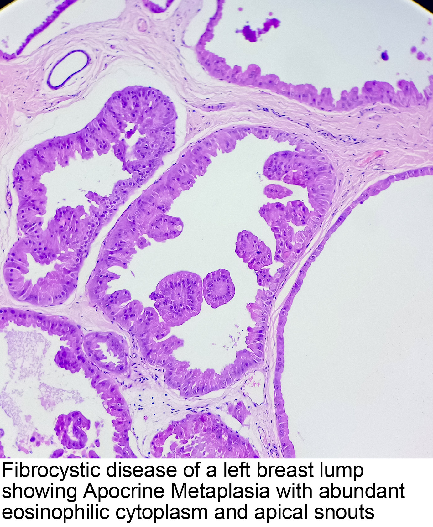 breast papilloma squamous metaplasia