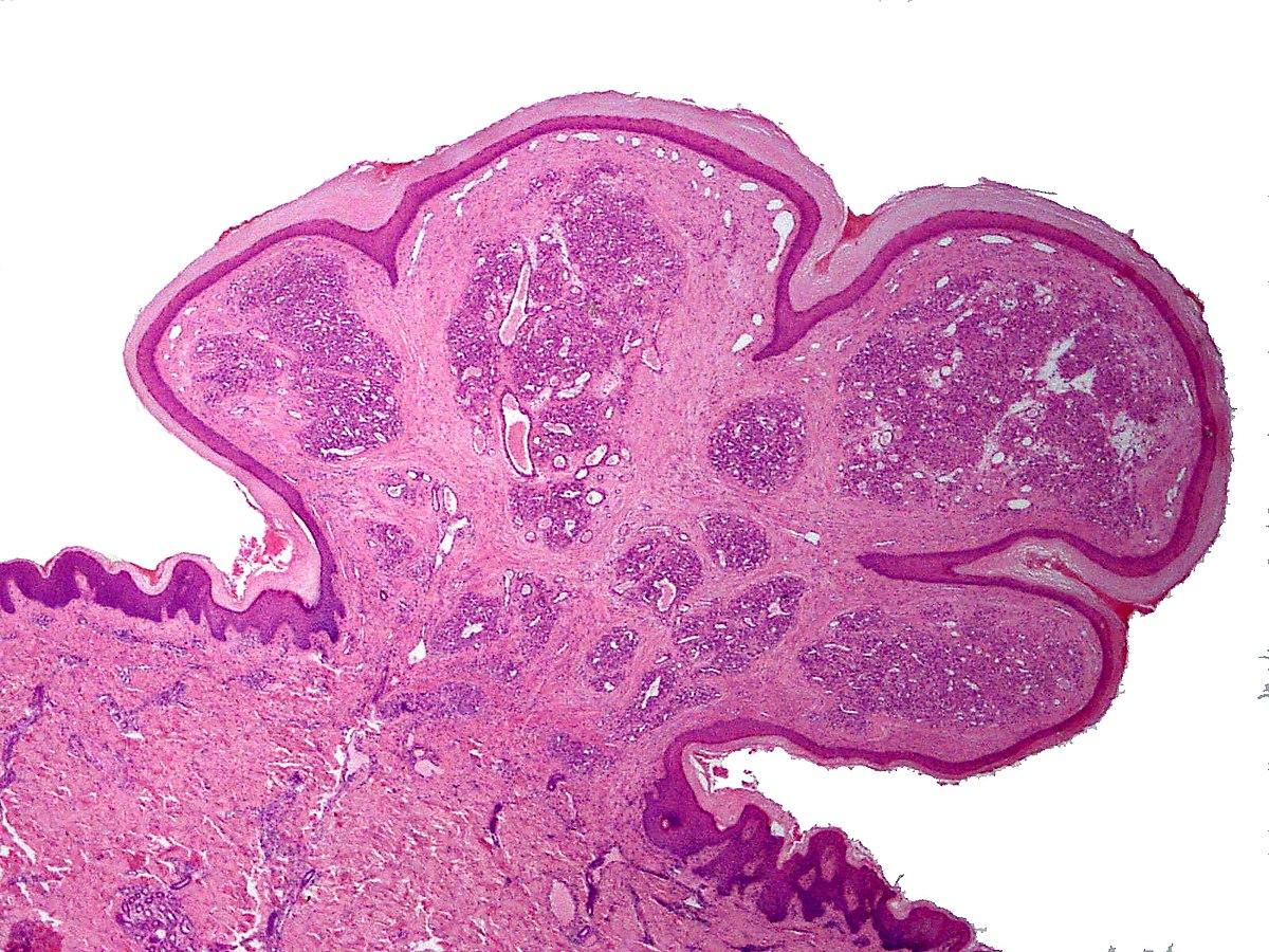 squamous papilloma scalp)