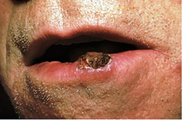 squamous papilloma on face
