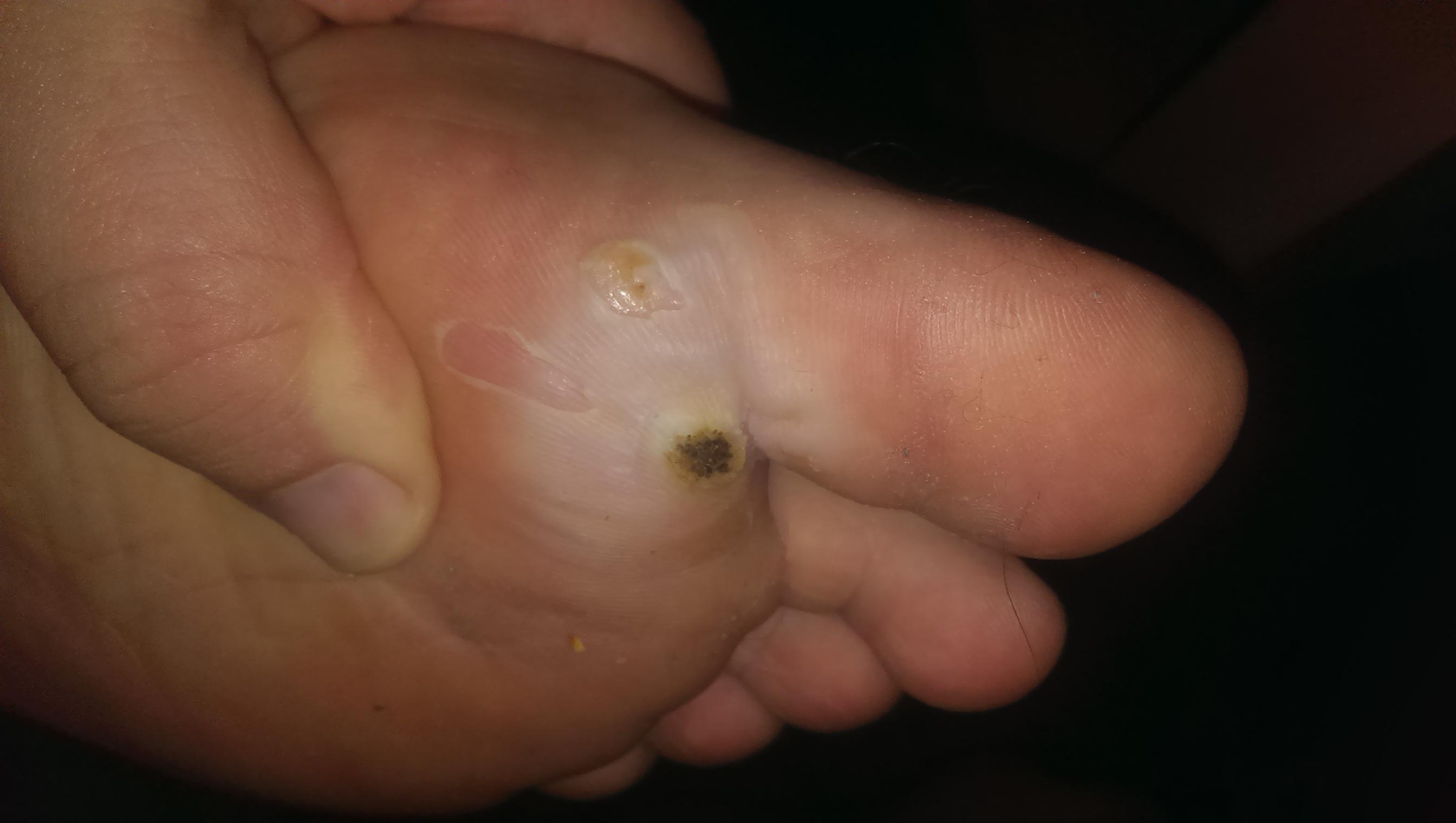 wart treatment reddit