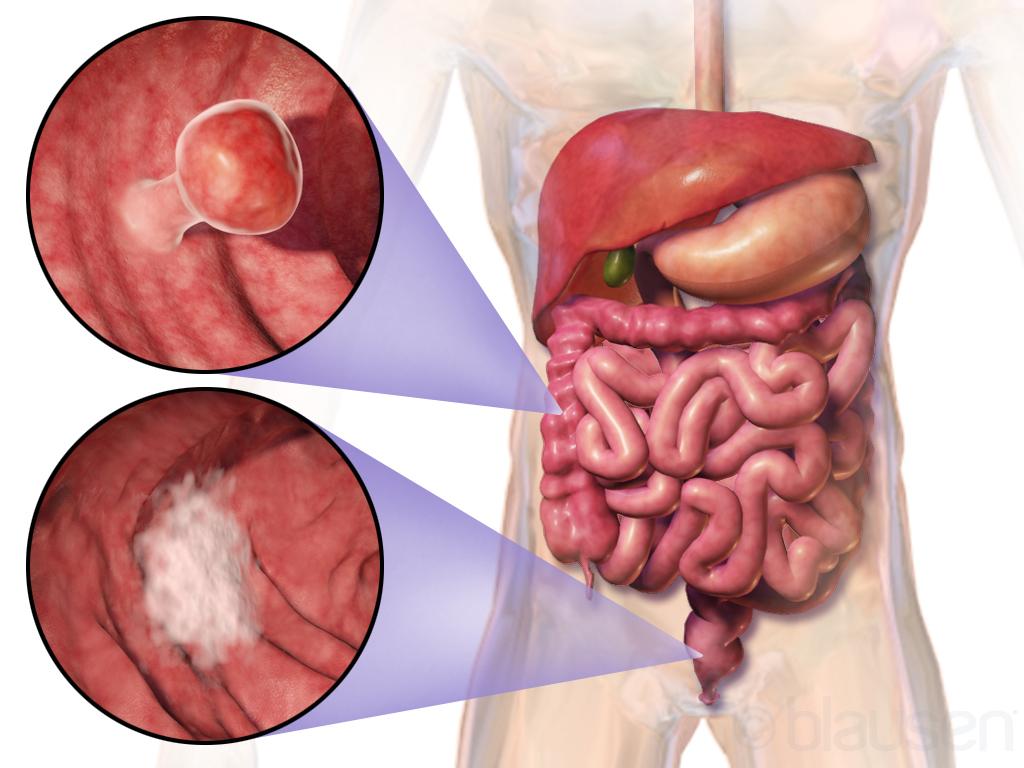 Cancerul de colon- depistarea lui trebuie sa inceapa de la 50 de ani!