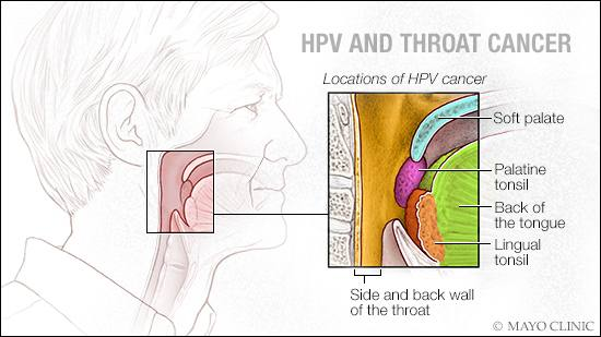 hpv throat tumor a invins cancerul ovarian
