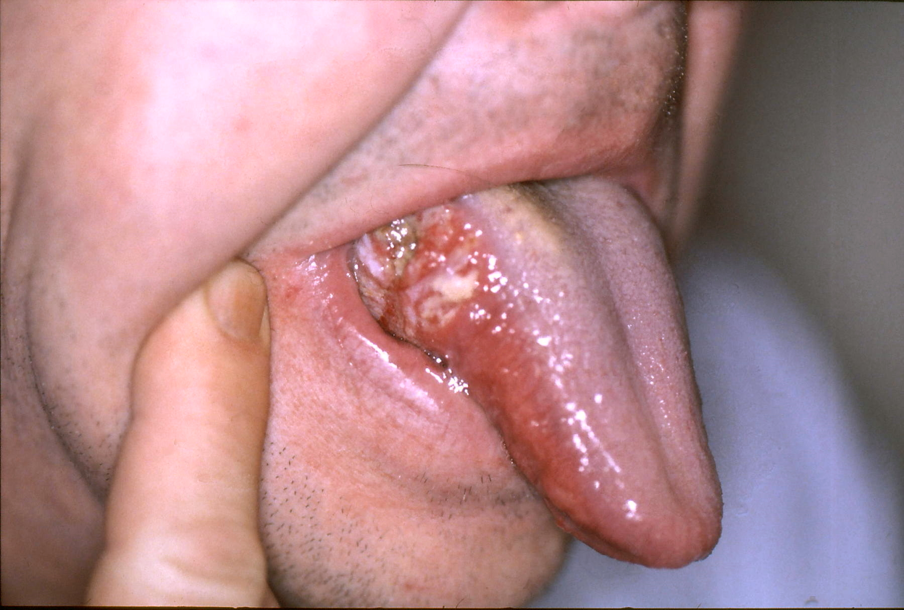 papilloma growth in mouth