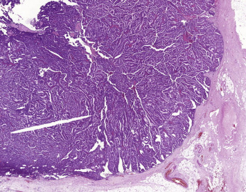 papillary lesion of breast)