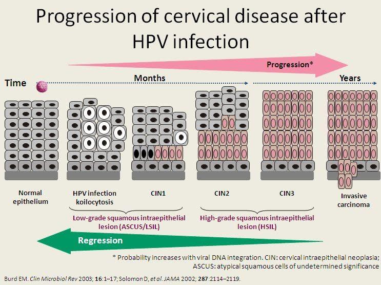 human papillomavirus in sentence