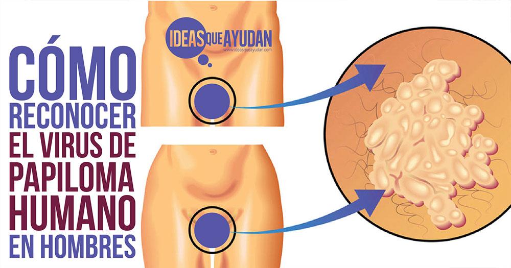 virus del papiloma humano varones