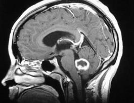cancer cerebral agresivo