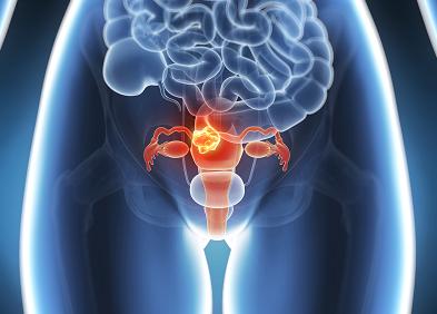 cancer col uterin symptome