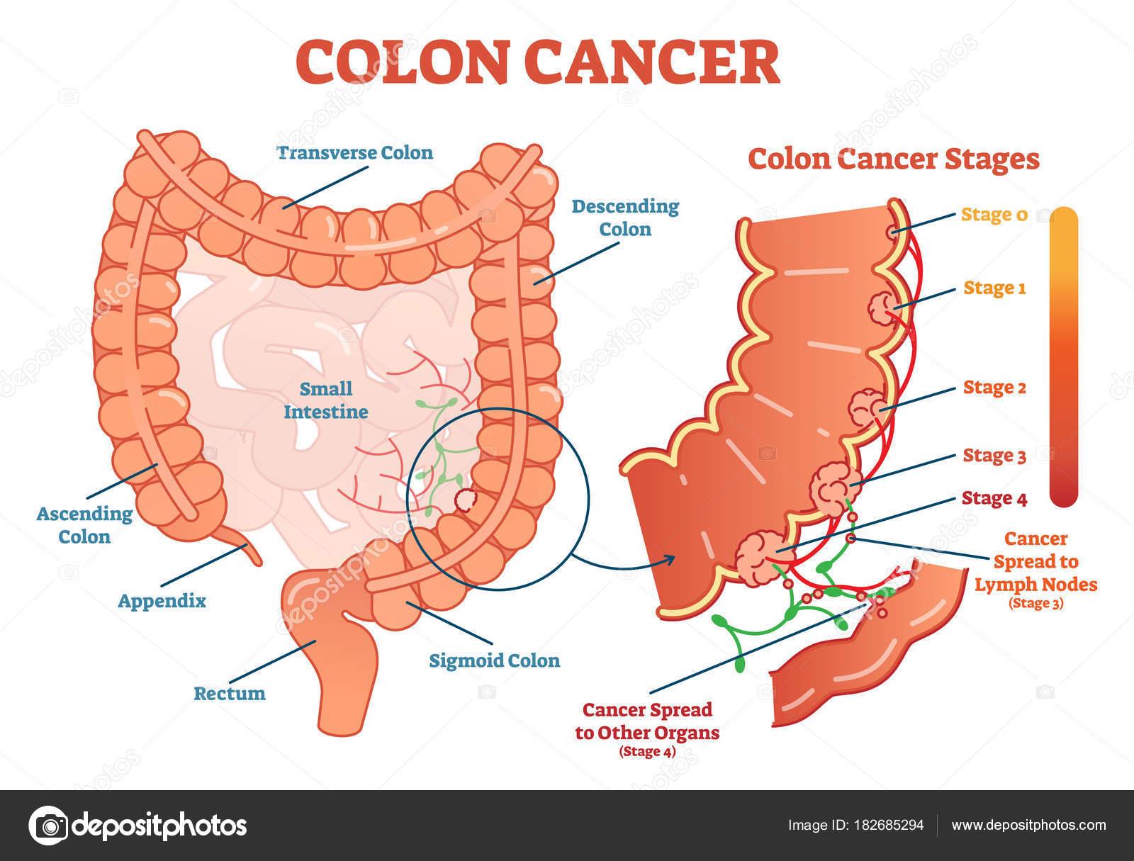 hpv que causa cancer de utero papilloma virus malattia venerea