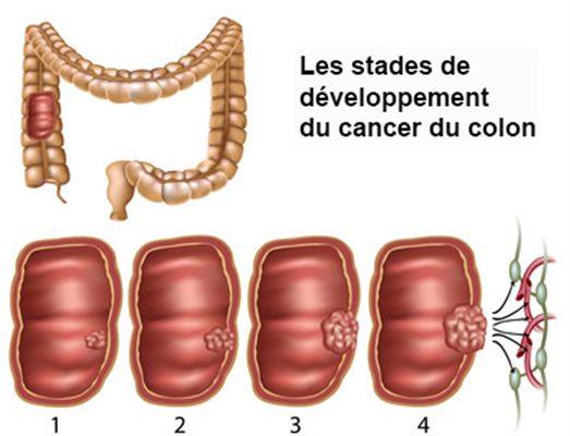 cancer colon femme symptome)