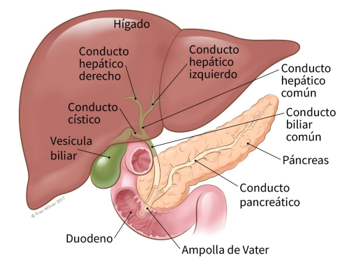 CARLOS CANCER DE PANCREAS
