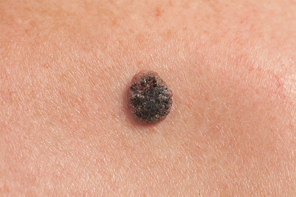 cancer de piele carcinom scuamos cancer pulmonar tpu
