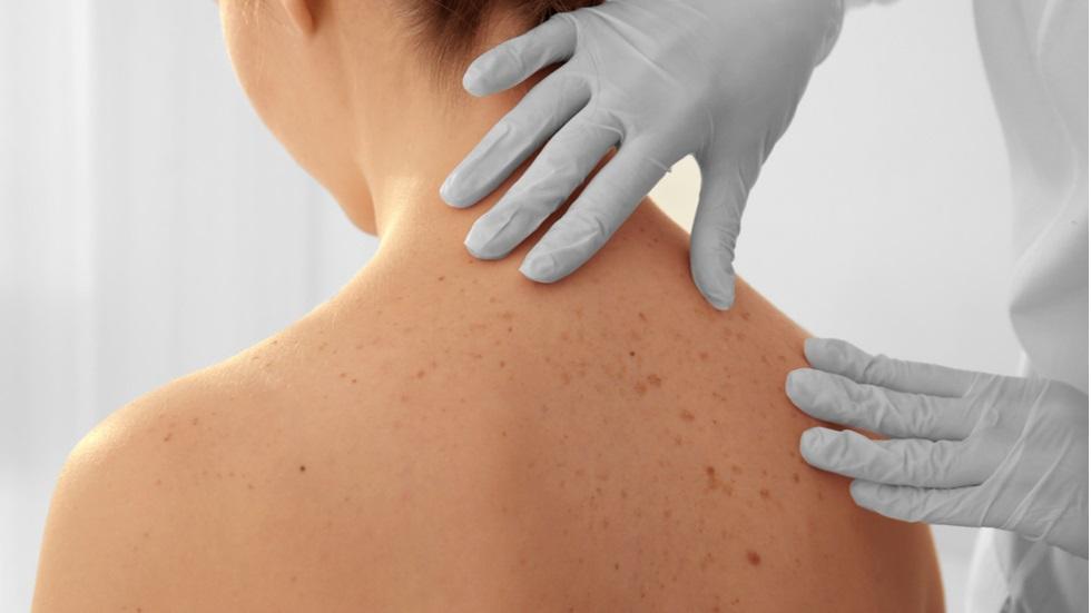 cancer de piele de la soare