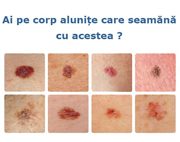 cancer de piele epiteliom)
