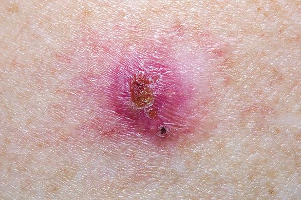cancer de piele pe san