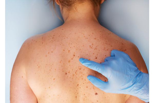 cancer de piele vindecare