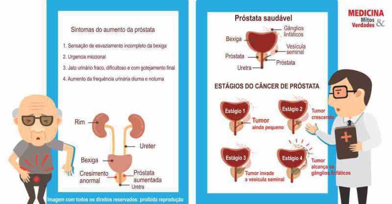 cancer de prostata definicao)