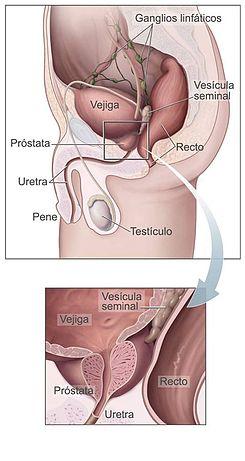 Afectarea prostatei în utretra