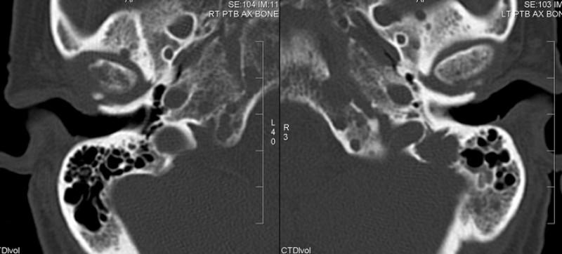 cancer foarte agresiv cancer de col uterin invaziv