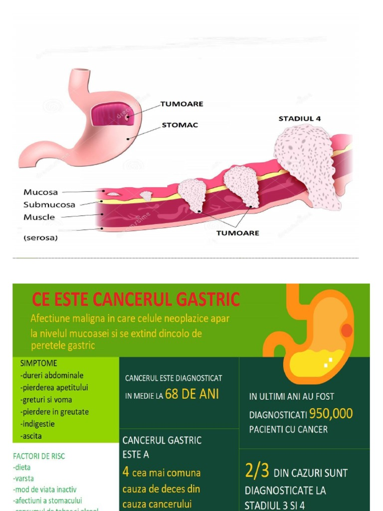 cancer gastric stadiul 4)
