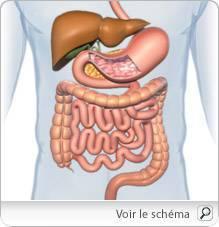 cancer intestin gros cauze