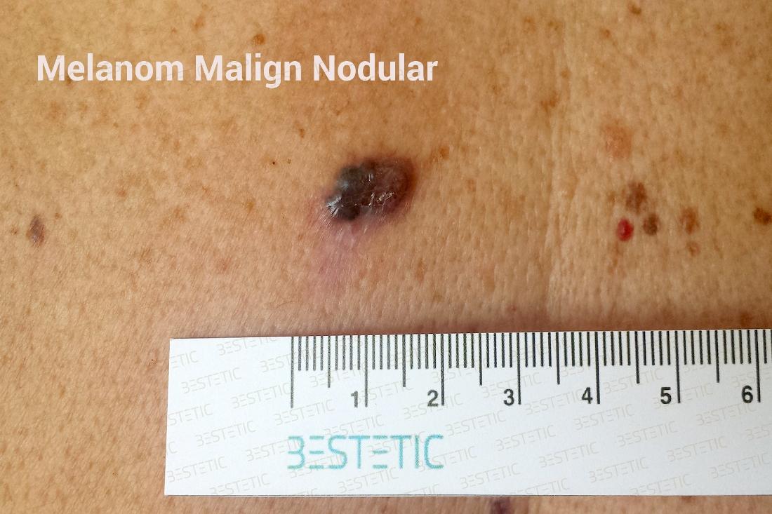cancer malign de piele