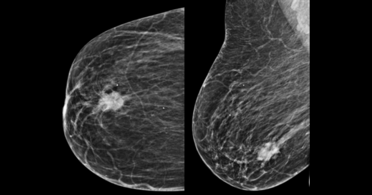 cancer mamar ecografie)