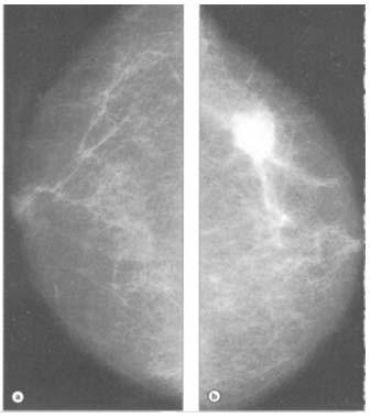 Cancer la san (mamar) - Tot ce trebuie sa stii   Cancer