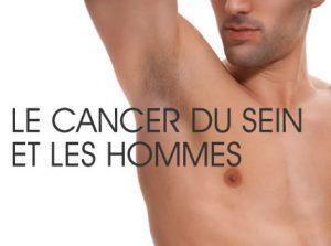 cancer mamelon homme