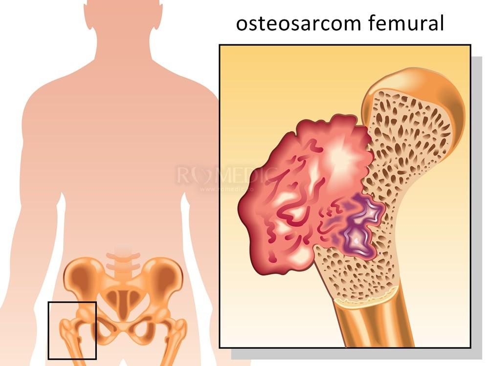 cancer osos cu metastaze pulmonare)