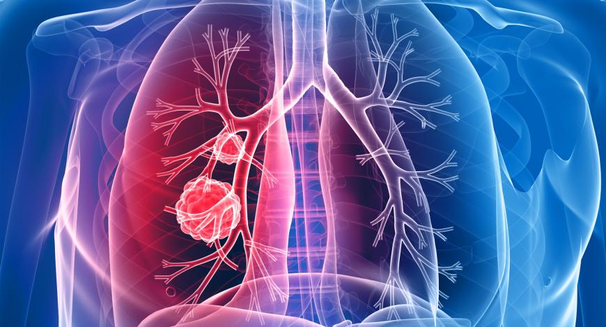 cancer pulmonar cu celule non-mici)