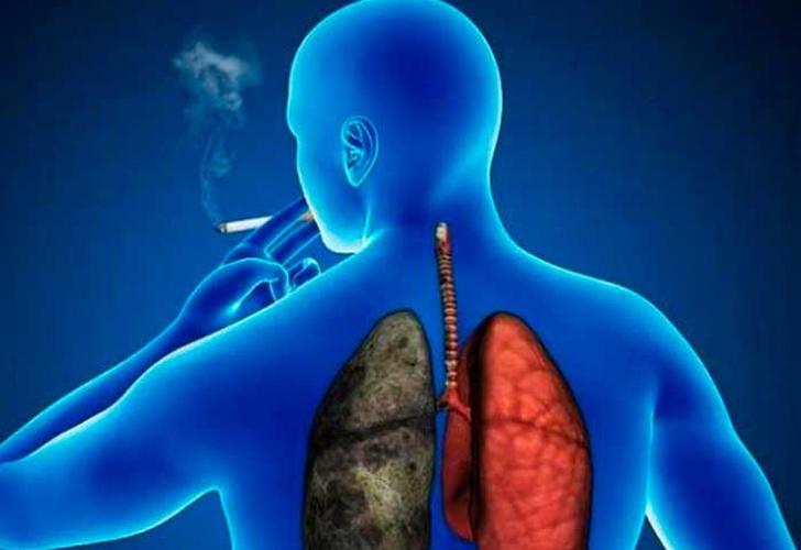 cancer pulmonar de que trata)