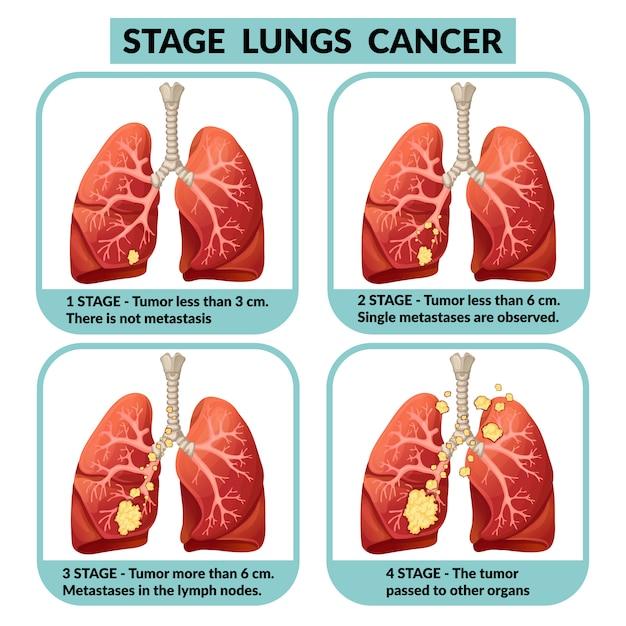 cancer pulmonar etapas