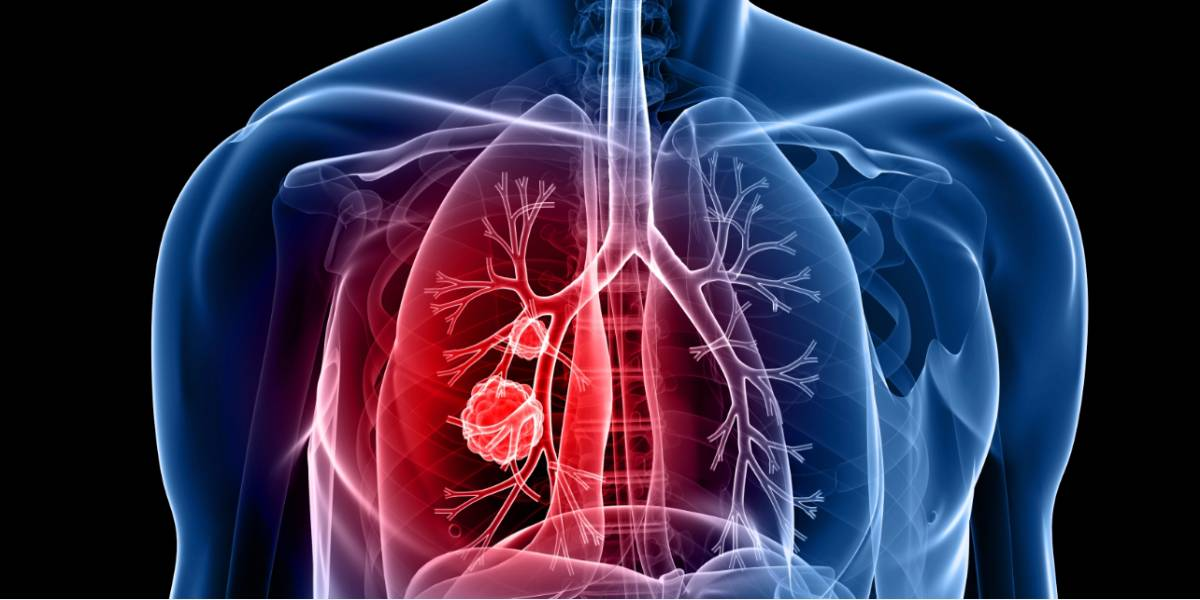 cancer pulmonar fara metastaze)
