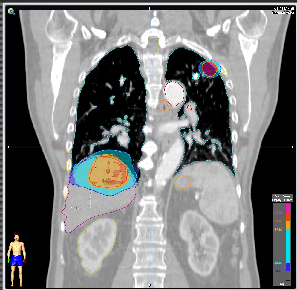 cancer pulmonar higado)