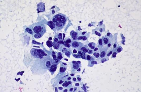 cancer pulmonar no microcitico)