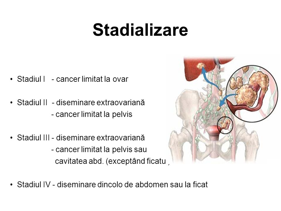 cancer stadiul 4 metastatic)