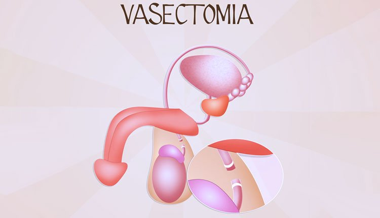 cancer testicular y vasectomia)