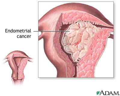 cancer uterin menopauza)